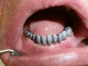 implantologija_02