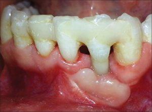 parodontologija_03